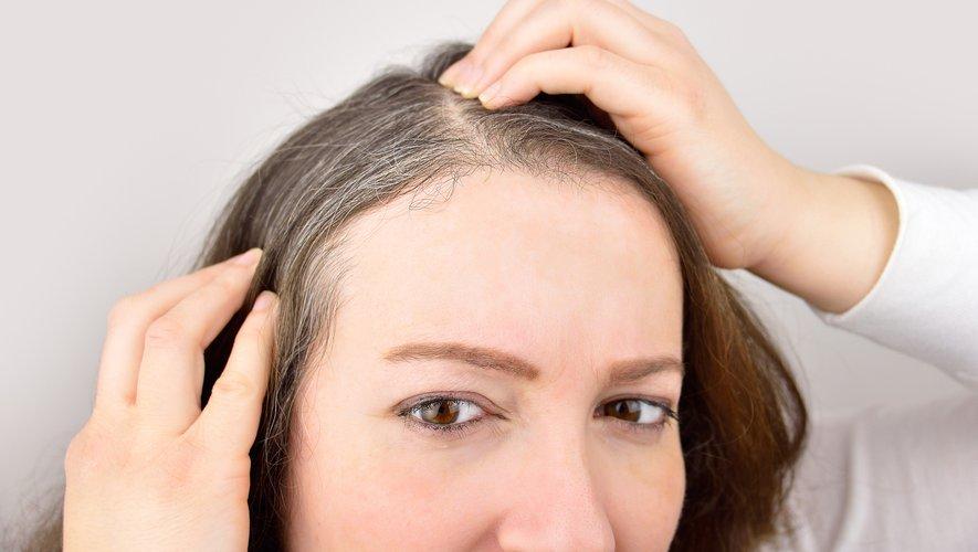 Une réponse immunitaire innée serait la résultante de l'apparition de cheveux gris lors d'un stress chronique ou d'une grave maladie