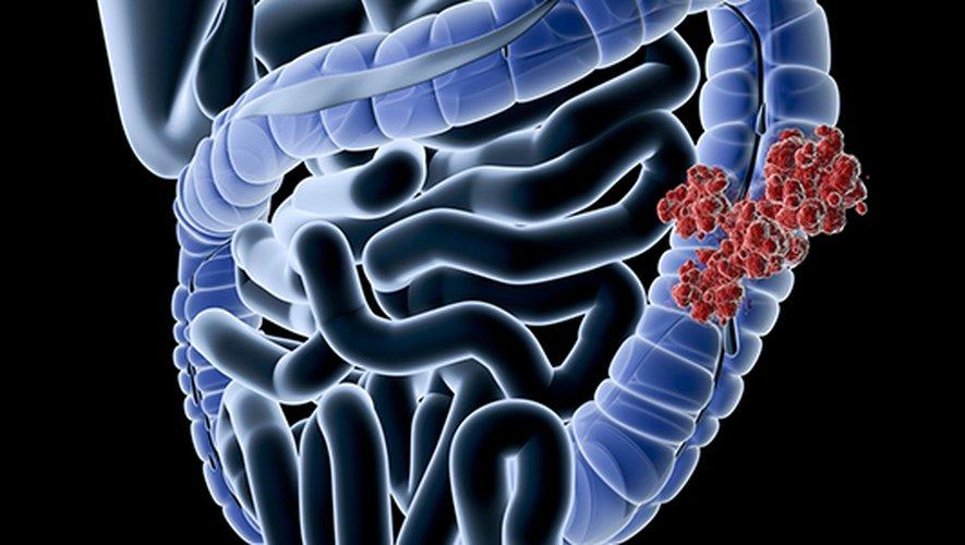 un kit de détection précoce élaboré par un petit laboratoire creusois sera commercialisé en septembre pour le cancer colorectal, avant de cibler d'autres organes.