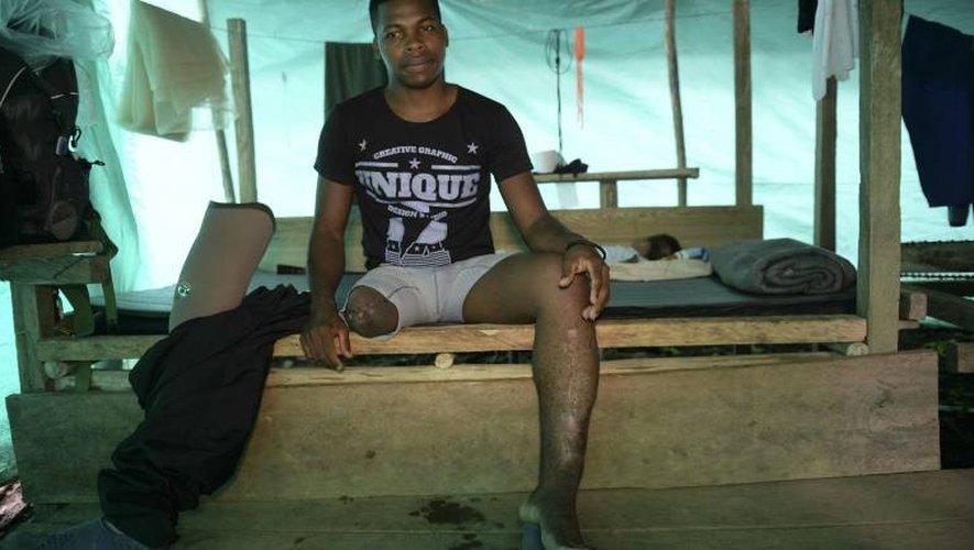 Colombie: les guérilleros des Farc et leurs cicatrices