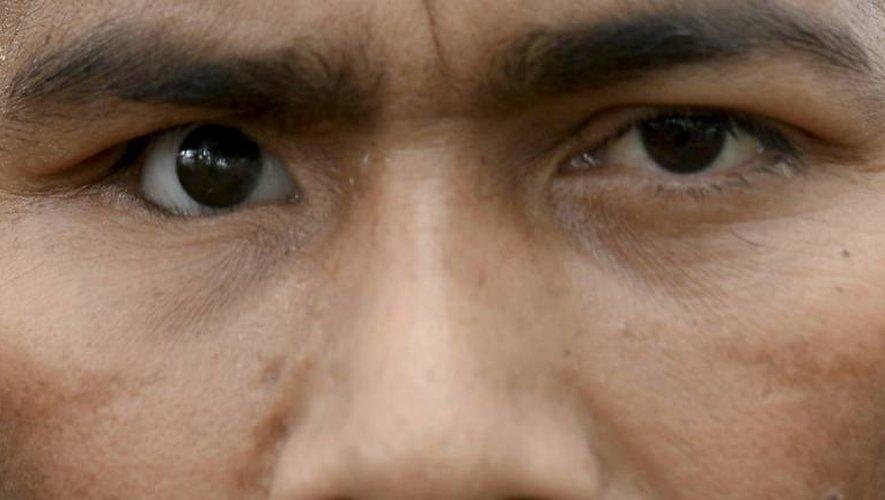 Sebastian, ancien combattant des Farc qui a perdu un oeil lors du conflit armé il y a 19 ans, pose lors de son entretien avec l'AFP au campement des Farc, à Vegaez, le 2 janvier 2017