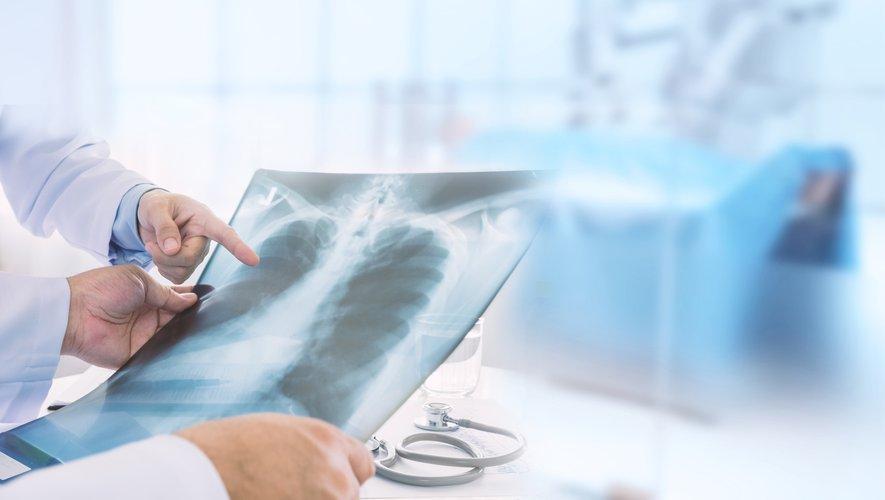 """""""Le changement climatique a des effets sur notre santé respiratoire"""", selon des sociétés médicales spécialisées en pneumologie et des ONG"""