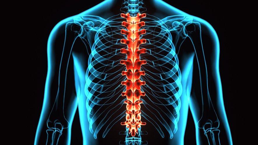 Un jeune homme totalement paralysé des jambes après un accident de motoneige a réussi à marcher aux Etats-Unis grâce à l'implant d'une électrode