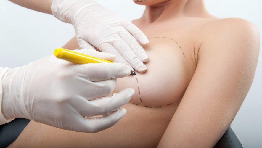 Lymphomes : les implants mammaires lisses préconisés par précaution