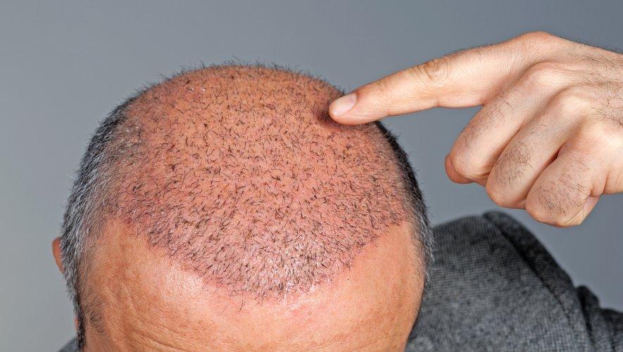 Des chercheurs ont réussi à faire pousser des poils sur des parties de peau endommagées