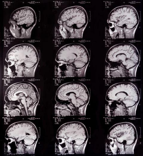 Quel rôle pour les cils dans notre cerveau ?