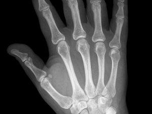 Mineurs étrangers non accompagnés : à quoi servent les tests osseux ?