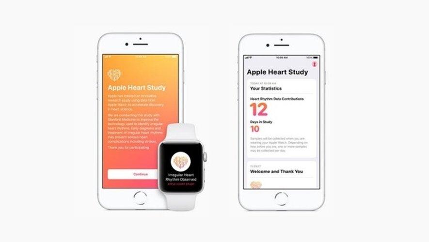 Une étude universitaire confirme que l'Apple Watch permet de détecter les irrégularités cardiaques.