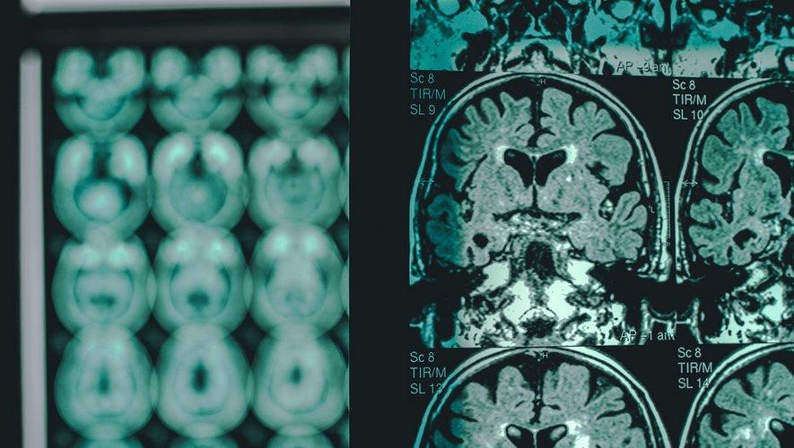 Maladie d'Alzheimer : découverte de 5 nouveaux marqueurs génétiques