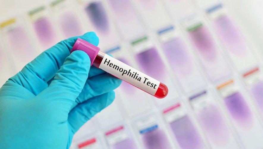 Tout savoir sur l'hémophilie