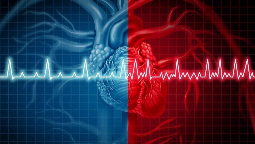 Fibrillation atriale : contrôler la pression sanguine pour chasser la démence