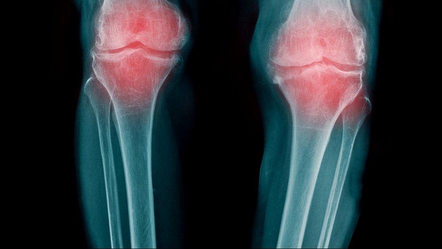 Arthrose : un pansement régénérant pour le cartilage articulaire
