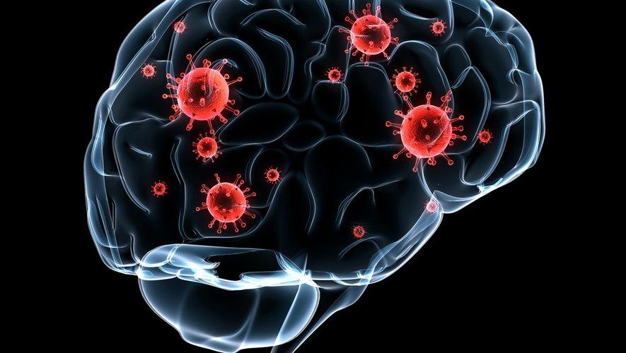 Immunothérapie : un traitement anticancéreux efficace contre une infection du cerveau