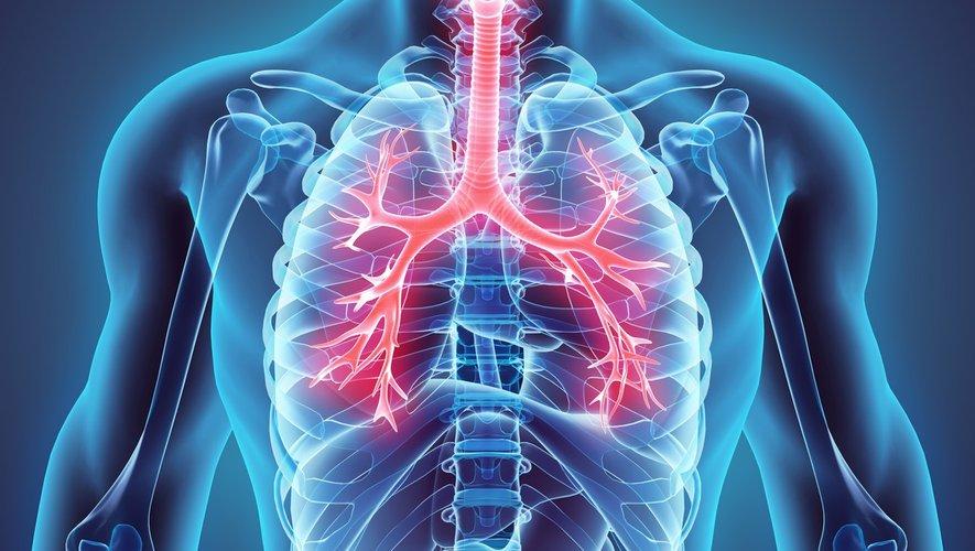 Journée mondiale sans tabac : la BPCO, une conséquence méconnue