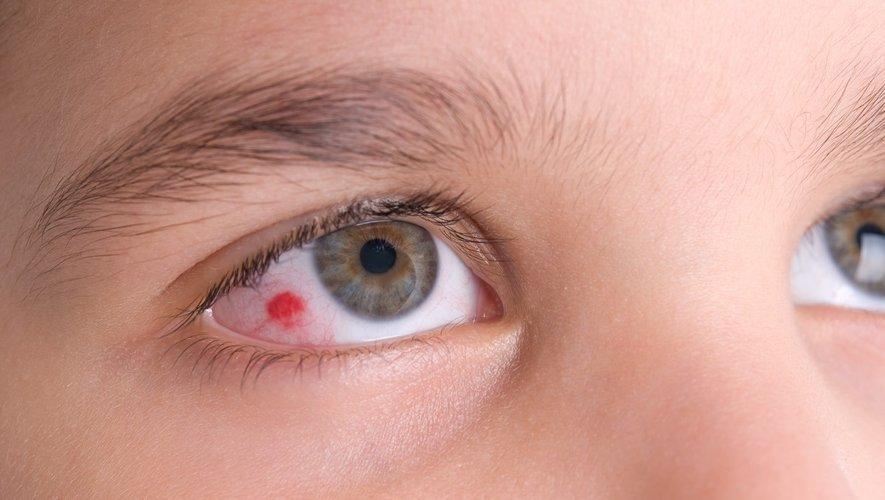 Votre enfant a un oeil rouge  ?