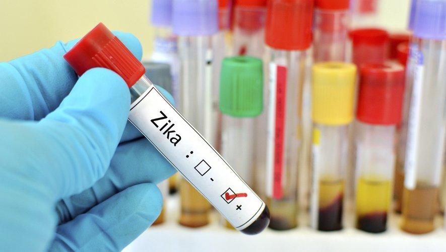 L'étude montre que le risque de donner naissance à un enfant atteint de microcéphalie pourrait être lié à la façon dont le système immunitaire réagit contre le virus Zika.