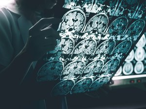 Maladie d'Alzheimer : bientôt un médicament efficace contre les symptômes ?