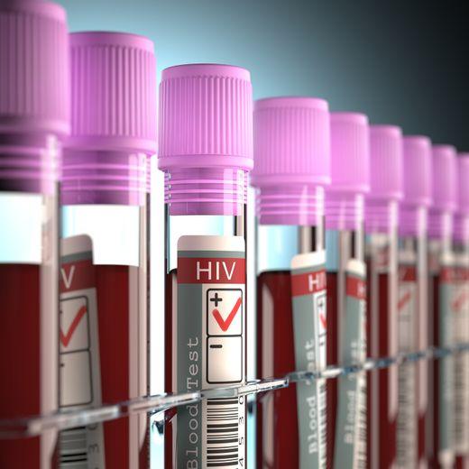 L'augmentation du dépistage pour le VIH s'est accompagnée d'une diminution du nombre de découvertes de séropositivité en France.