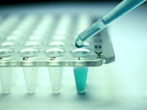 Le manque de nouveaux antibiotiques menaçait la lutte contre la propagation des bactéries résistantes aux médicaments, qui tuent chaque année des dizaines de milliers de personnes.