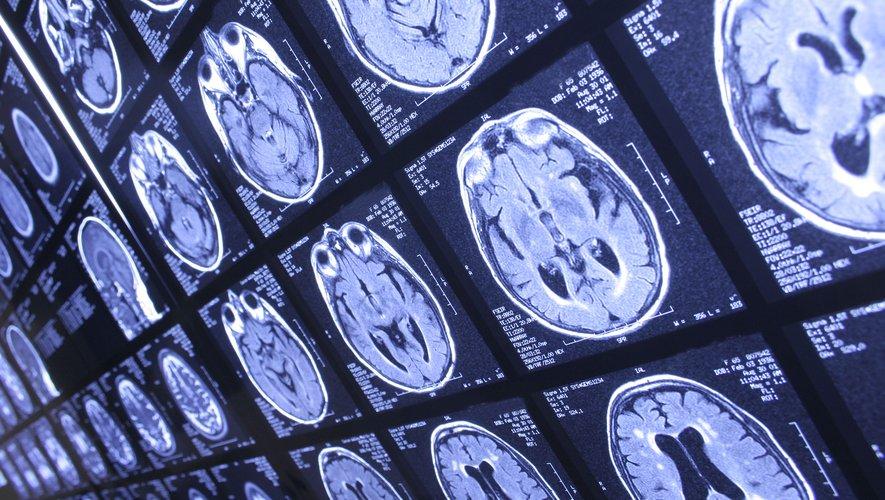 """Les scanners ont révélé que le cortex cérébral des personnes au comportement antisocial """"persistant"""" était plus petit et moins épais que chez les autres individus qui se plient aux normes sociales."""