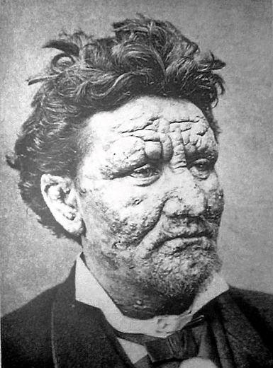 Arran Reeve, un homme de 24 ans affecté par la lèpre.