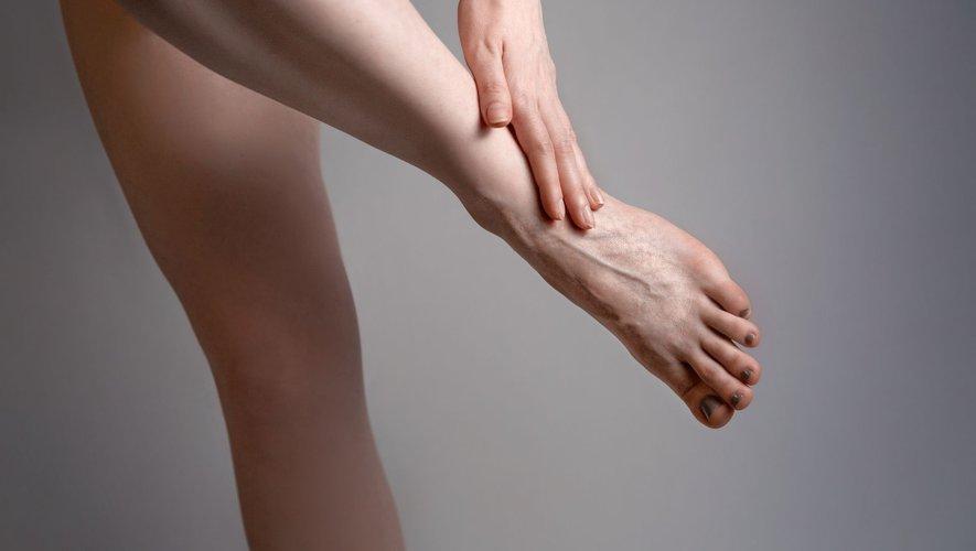 4 solutions contre les jambes lourdes