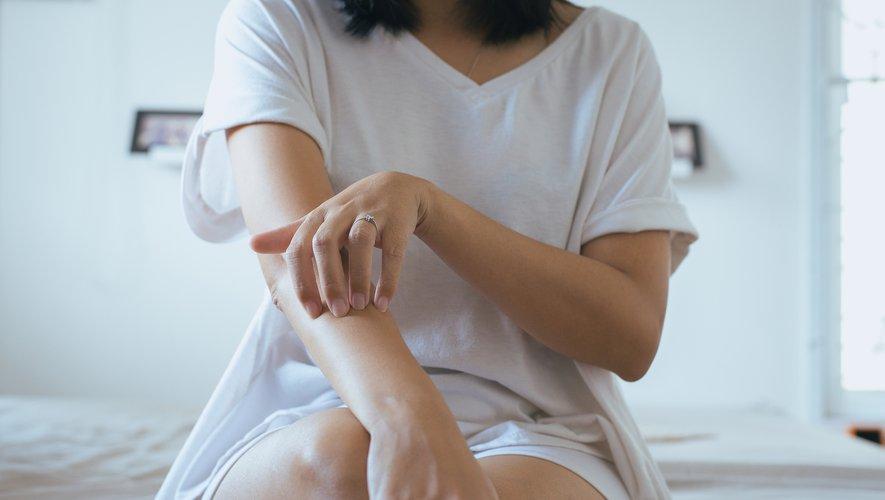 Psoriasis : quel reste à charge ?